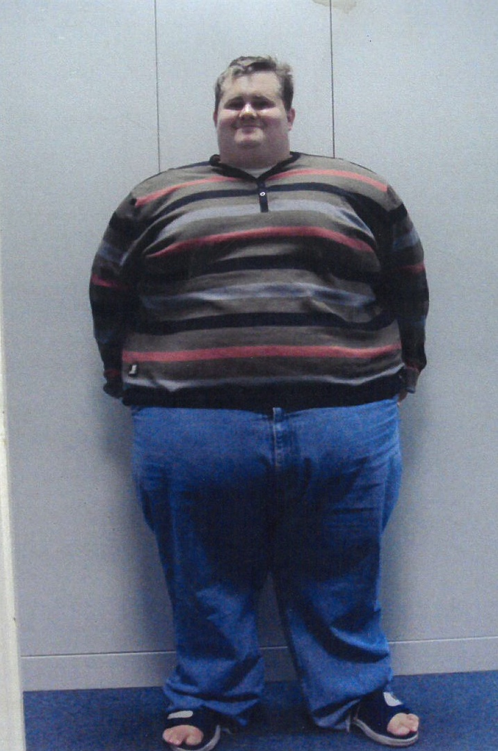 Man dubbed 'The Human doughnut' loses over 20 stone in